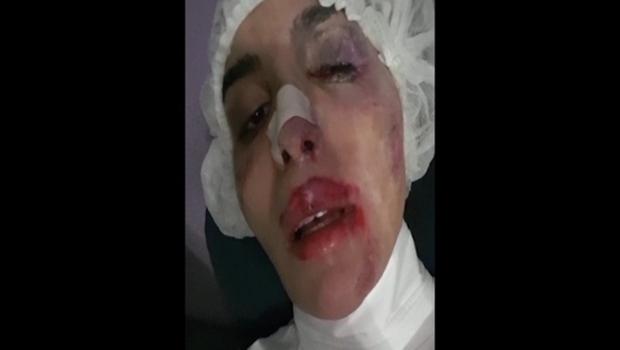 Imagens de Vivinay com o rosto desfigurado depois de agressão | Reprodução / Arquivo pessoal