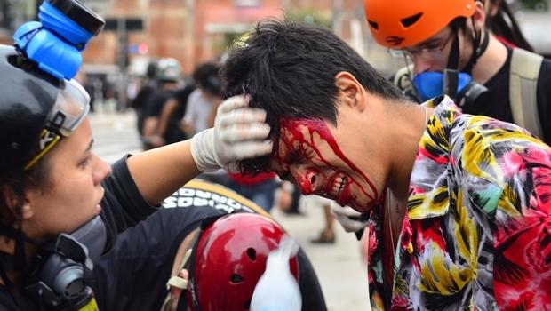 Jovem machucado após confronto com a PM durante protesto em São Paulo. Imagens assim têm se tornado cada vez mais comum em todo o país | Foto: Rovena Rosa