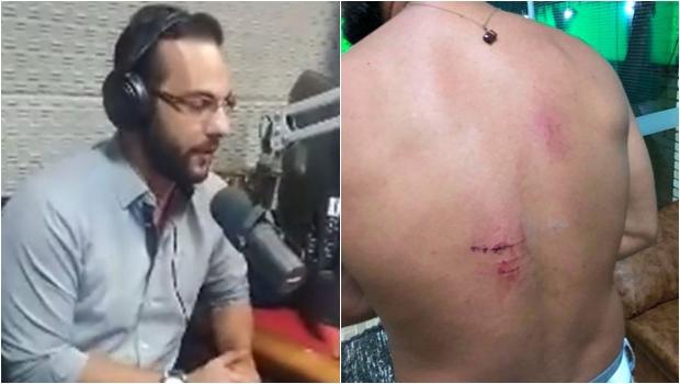 Radialista de Catalão sofre atentado, denuncia o deputado Gustavo Sebba