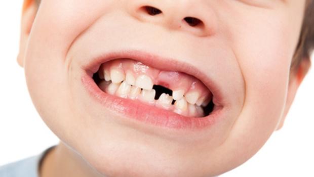 Agenesia: condição leva 7% da população a não desenvolver todos os dentes