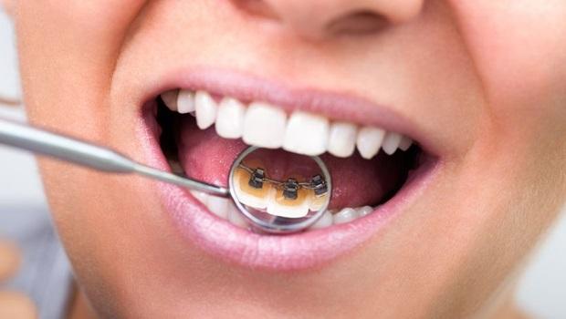Mais de 11% da população nunca visitou um dentista