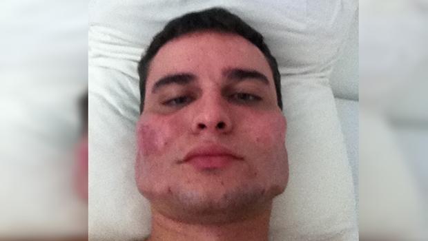Cremego apura denúncias contra médico que teria deformado rosto de pacientes