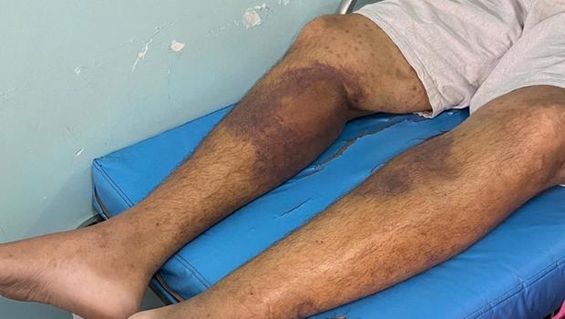 Após surto de bactéria desconhecida, Ministério Público pede interdição parcial de penitenciária em Roraima
