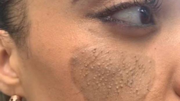 Mulher busca cirurgia para retirar pelos pubianos do rosto