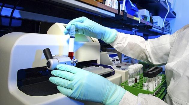 Goiás tem 179 infectados pela Covid-19 e 7 óbitos, segundo Secretaria de Saúde