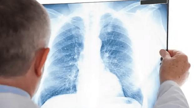 Infectologistas alertam para gravidade da Covid-19 em pacientes com tuberculose