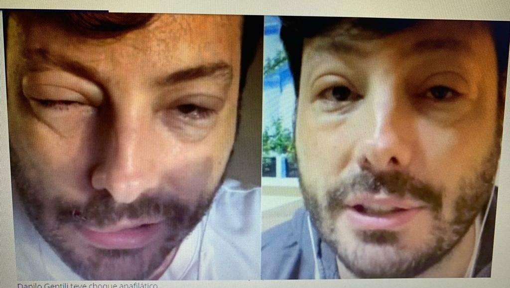 Danilo Gentili, do SBT, aparece com a cara inchada. Veja o que aconteceu