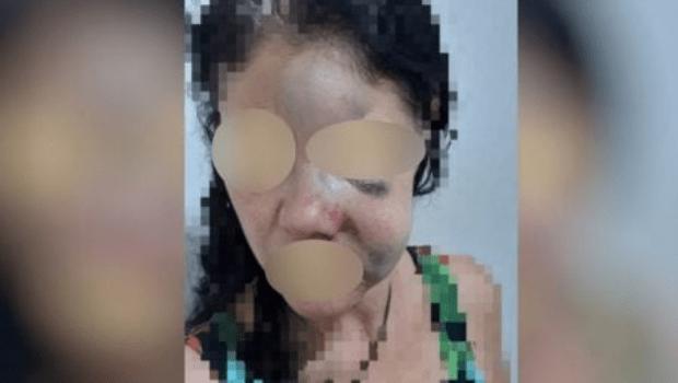 Em Jaraguá, homem desobedece medida protetiva e espanca namorada