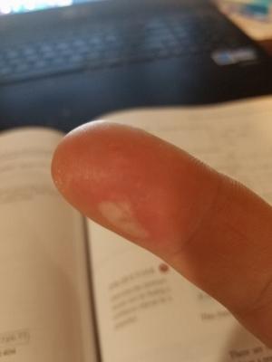 Burnt Finger (300x400)