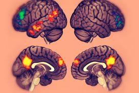 El cerebro sí distingue las imágenes fantaseadas de las vividas.