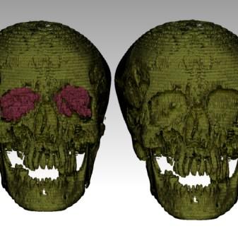 Nesmin skull-orbits