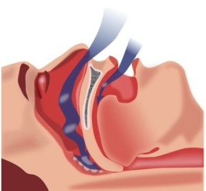 Sleep Apnea Tongue Obstruction