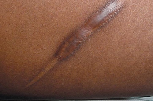 Picture of Hypertrophic scar. This type of scars occur as a result of wound healing that might have been complicated by infection