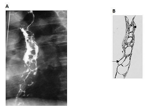 A barium swallow showing multiple filling defects due to esophageal varices.