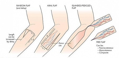 Types of Flaps according to blood supply