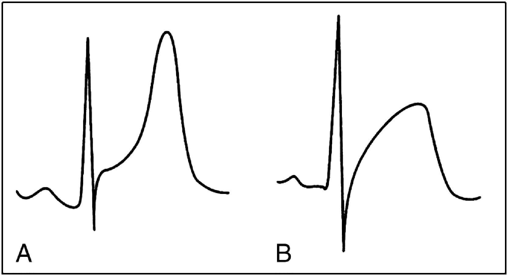 Electrocardiographic Manifestations Of Cardiac Infectious Inflammatory Disorders