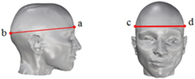 Figure 1 Some Anthropometric Parameters Measured In This Study