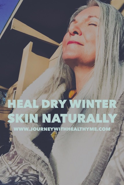 Heal Dry Winter Skin Naturally