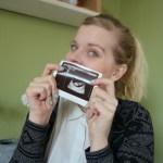 Mijn zwangerschapsbucketlist 2.0