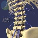 Identifying Cauda Equina Syndrome - Joy Lane Clinic Whitstable