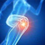 Joy Lane Clinic Whitstable - Treatment for Runner's Knee