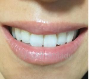 crest3D whitening professional effect クレスト3Dホワイト ホワイトニング 効果 使用後 アメリカ 歯