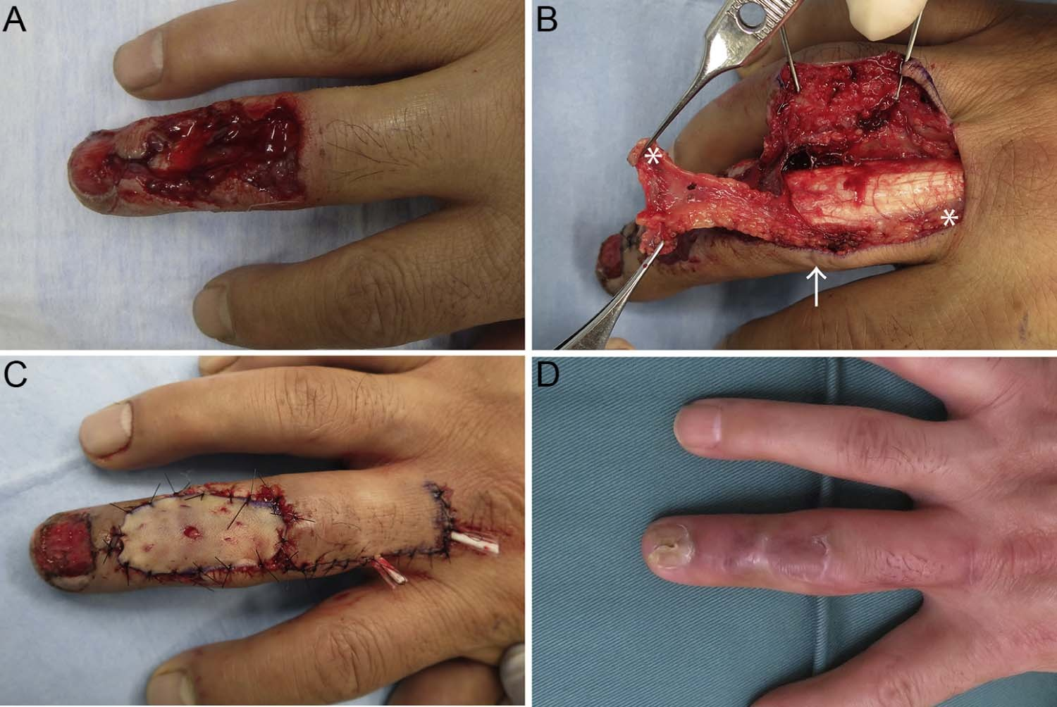 Tendon Finger Laceration Extensor