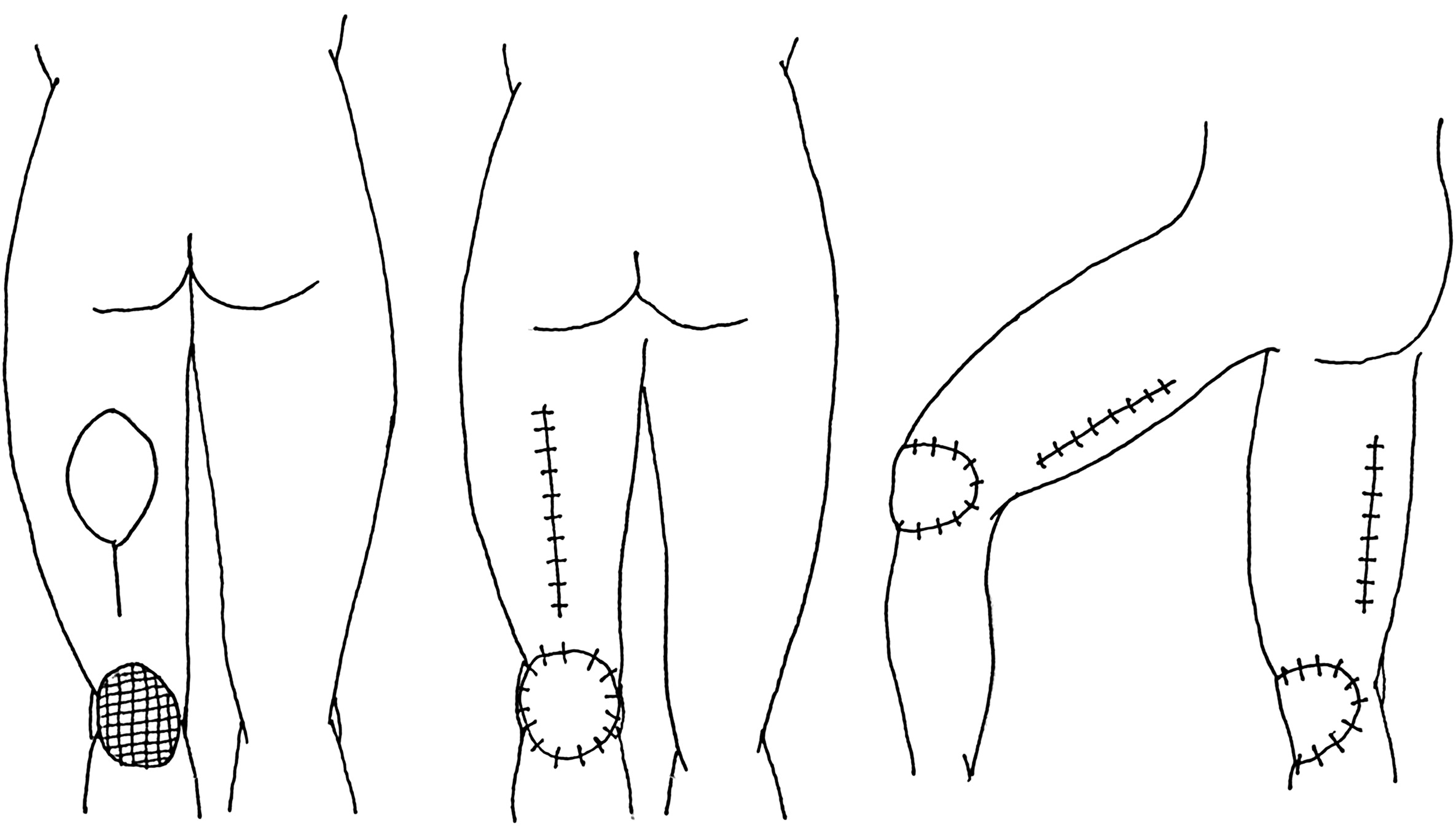 Reconstruction Of Defects With The Posterior Femoral
