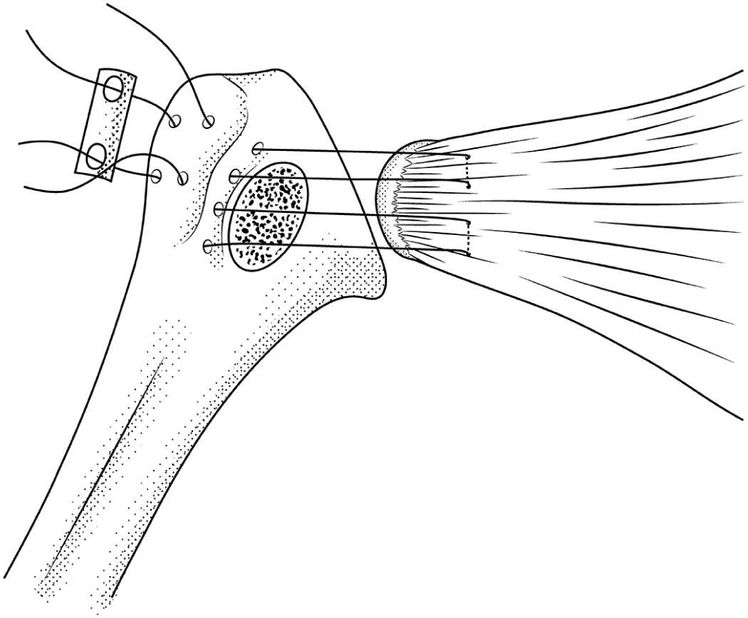 A Biomechanical Comparison Of Subscapularis Repair