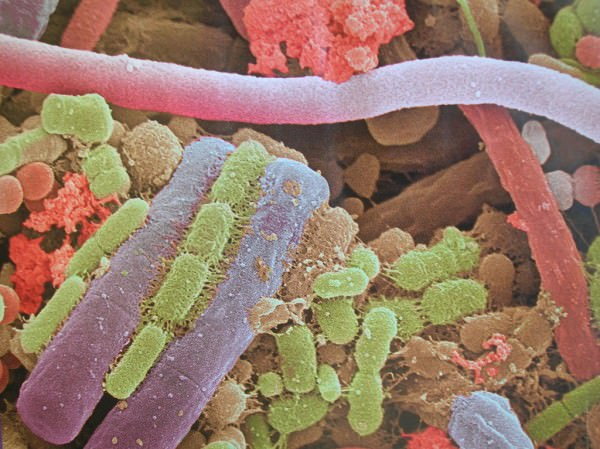 Placa bateriana vista al microscopio