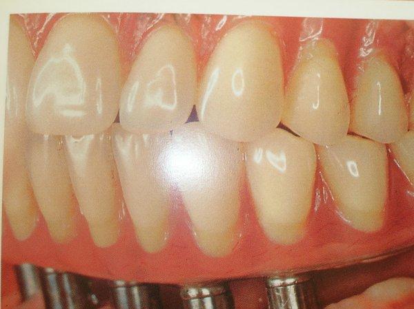 curso-implantes-030