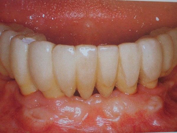 curso-implantes-069