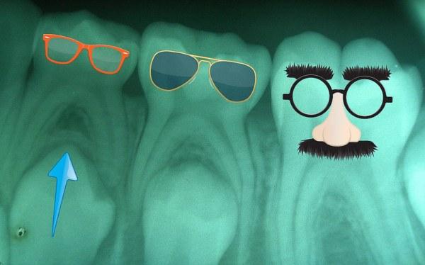 Los Srs. molares Juan Balboa