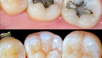 Caries Dental Qué Son Y Cómo Se Previenen Juanbalboacom