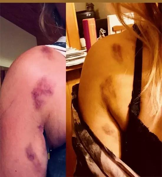 Shotgun bruises