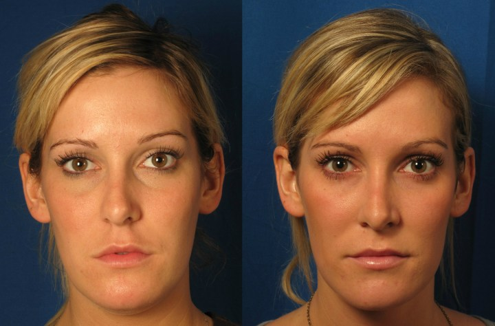 Belotero Dermal Filler Orange County