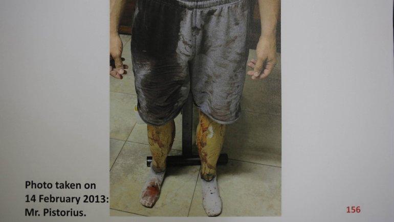 Atletul Paralimpic a avut pete pe tot corpul. Chiar si protezele au fost marcate cu sânge de la iubita lui.