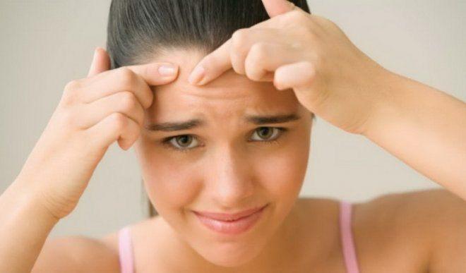 Tratează acneea cu paste de dinți și bicarbonat de sodiu