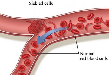https://i2.wp.com/www.just-health.net/images/10422459/what%20is%20sickle%20cell%20disease.jpg?w=696