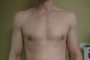 What is gynecomastia and how it can help men