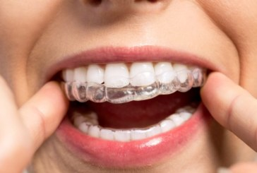 Benefits Offered by Invisalign