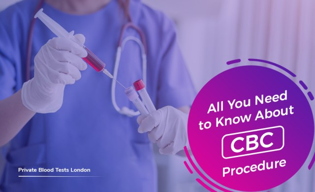 ALL YOU NEED TO KNOW ABOUT CBC PROCEDURE