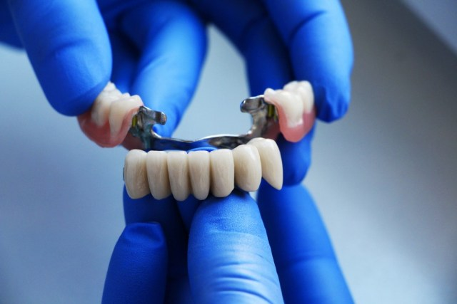 tooth replacements