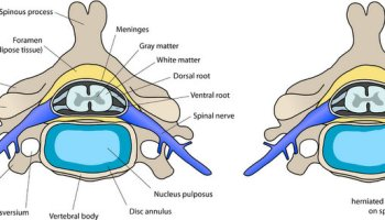 Herniated Disc Settlements (Car Accidents and More)