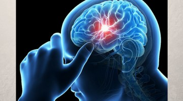 Stroke And Death: How To Avoid It