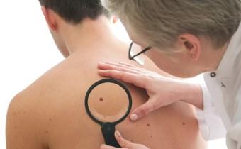 Médico examina pinta em paciente de costas.