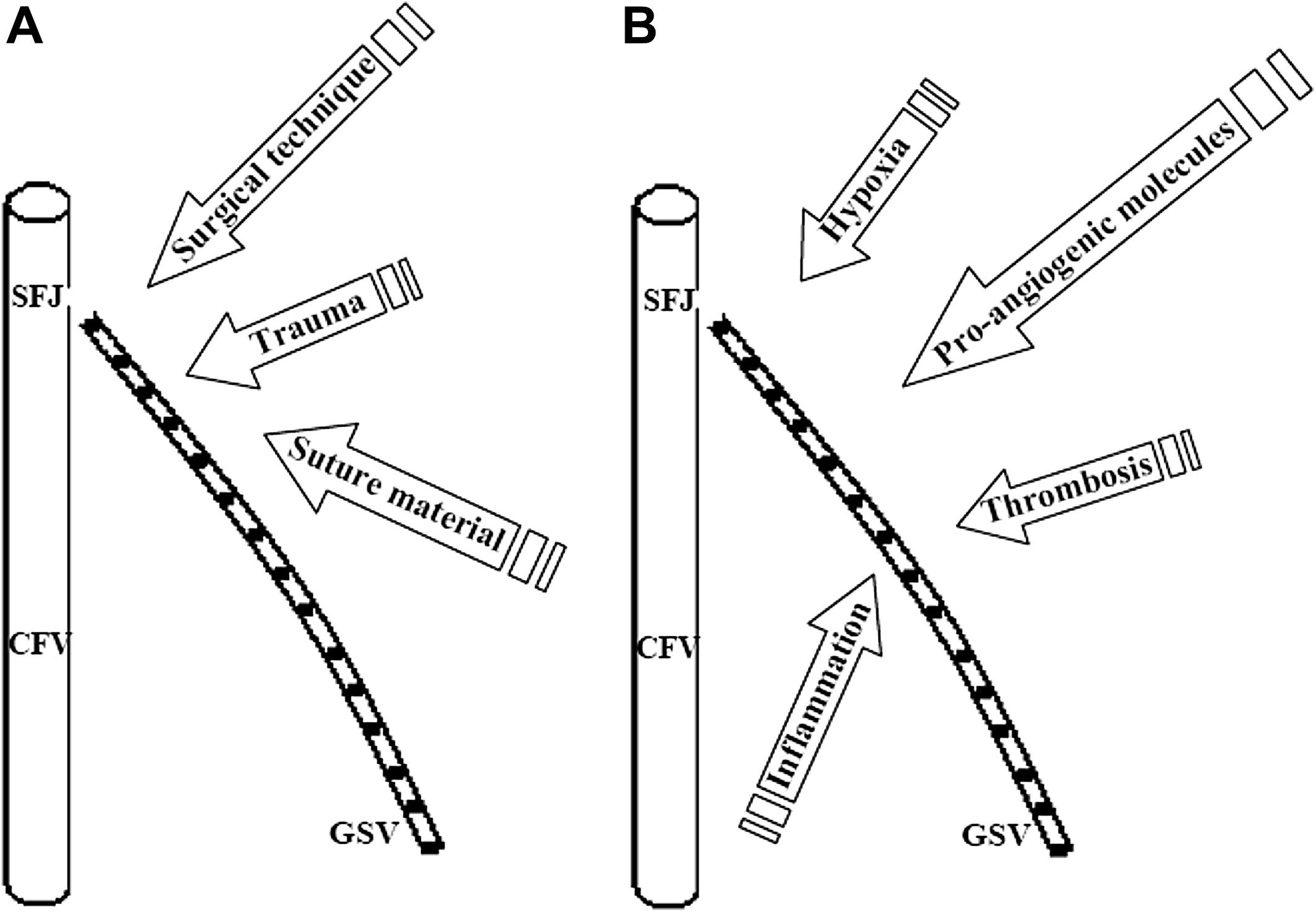 Pathogenesis And Etiology Of Recurrent Varicose Veins