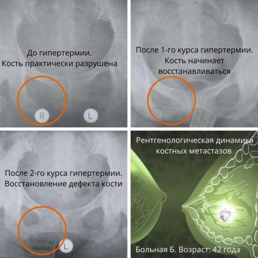 лечение метастазов в кости