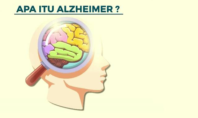 manfaat bermain catur - Membantu Menghindari Alzheimer
