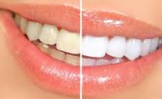 Permalink ke Cara Jitu Punya Gigi Putih